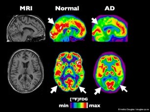 Alzheimers Disease includes reduced brain activity and function (red areas above), the result of years of accumulated damage. Molecules in pot seem to prevent this damage.